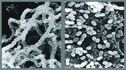Bakterie przed i po dzialaniu Ultradzwiekow.