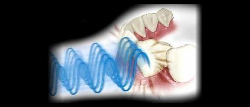 działanie szczoteczki ultradźwiękowej MEGASONEX M8