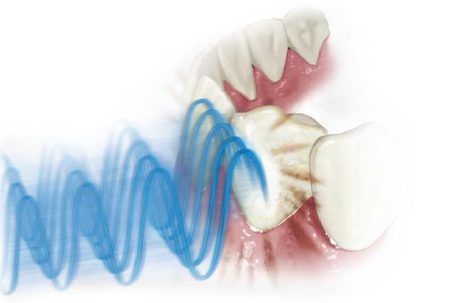 Szczoteczki ultradźwiękowe EMAG Emmi-Dental Professional